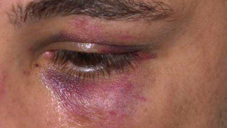 REAGIU: Para se defender de agressão, mulher ataca marido a facada